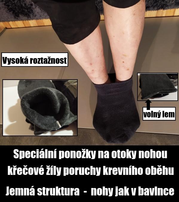 Ponožky na oteklé nohy